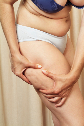 Cellulite Remedies Science