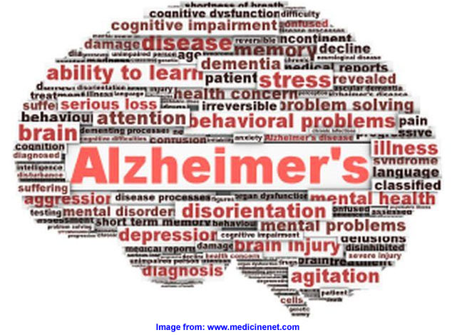 alzheimer's disease cure