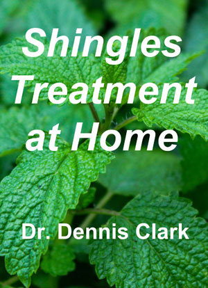 shingles treatment at home - cover 2